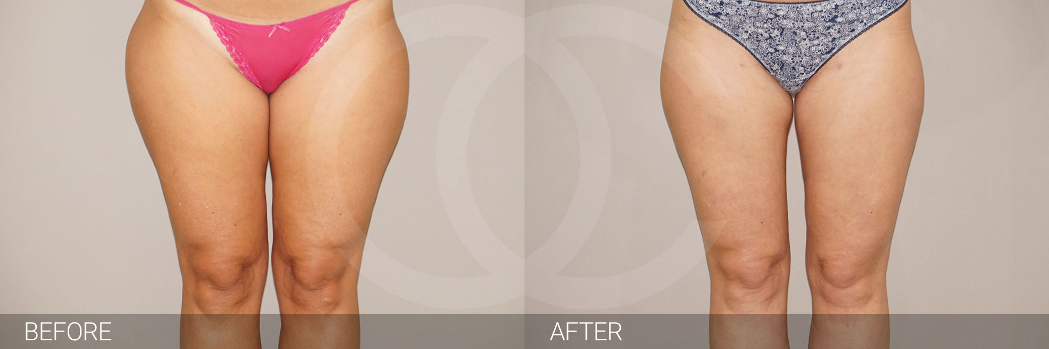 Liposuction / liposculpture photo before and after