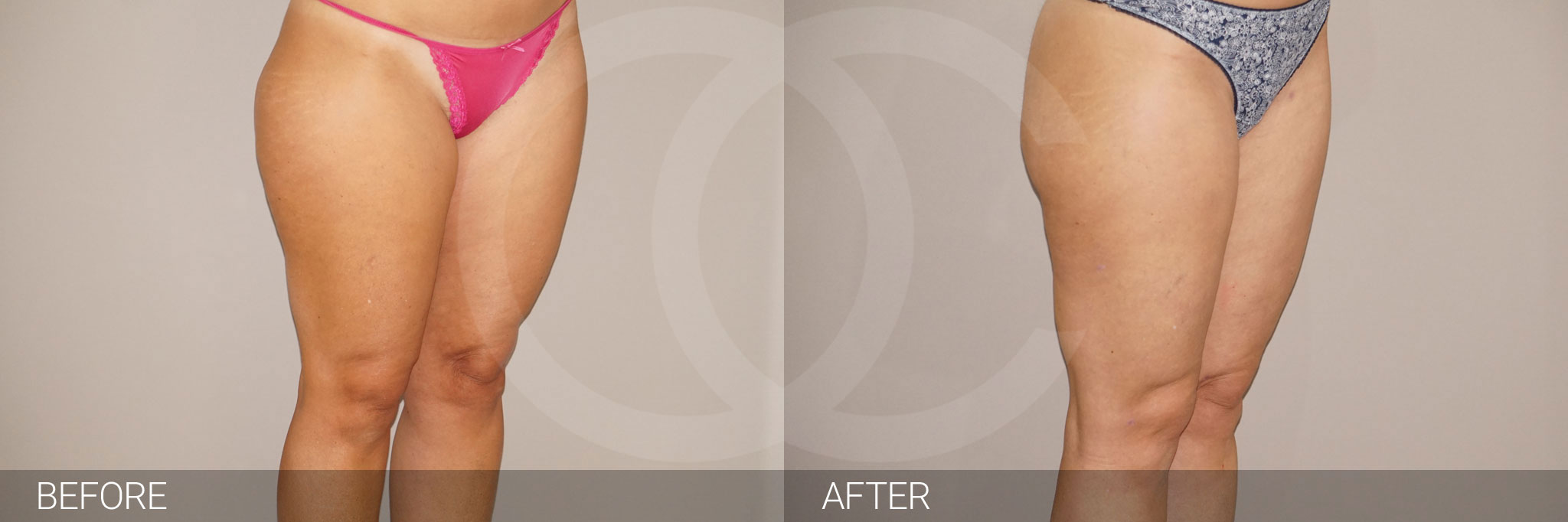 Liposuction Waterjet-assisted Liposuction ante/post-op III