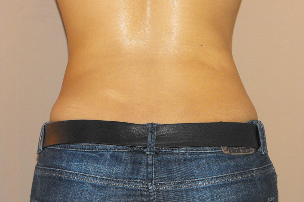 Liposuction Lipoplasty after profile