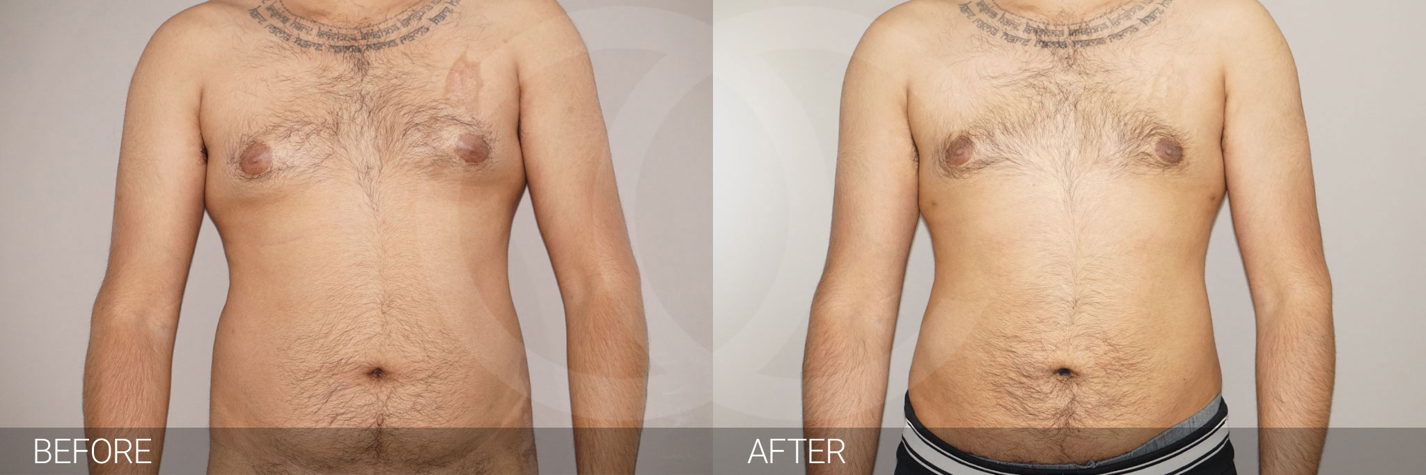 Liposuction Male surgery ante/post-op I