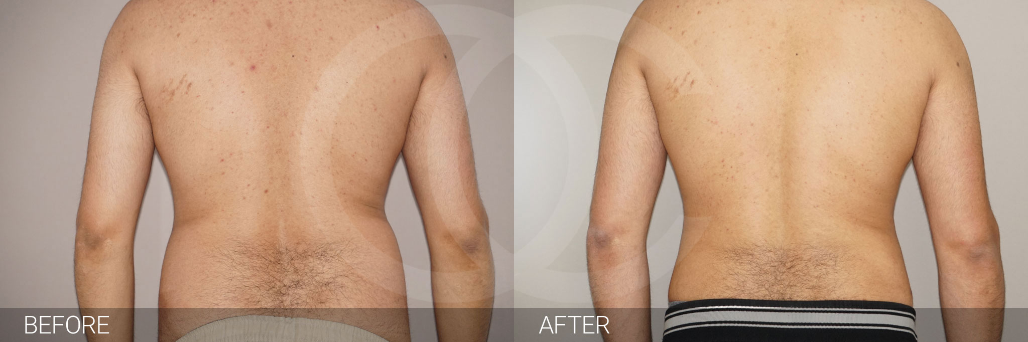 Liposuction Male surgery ante/post-op III