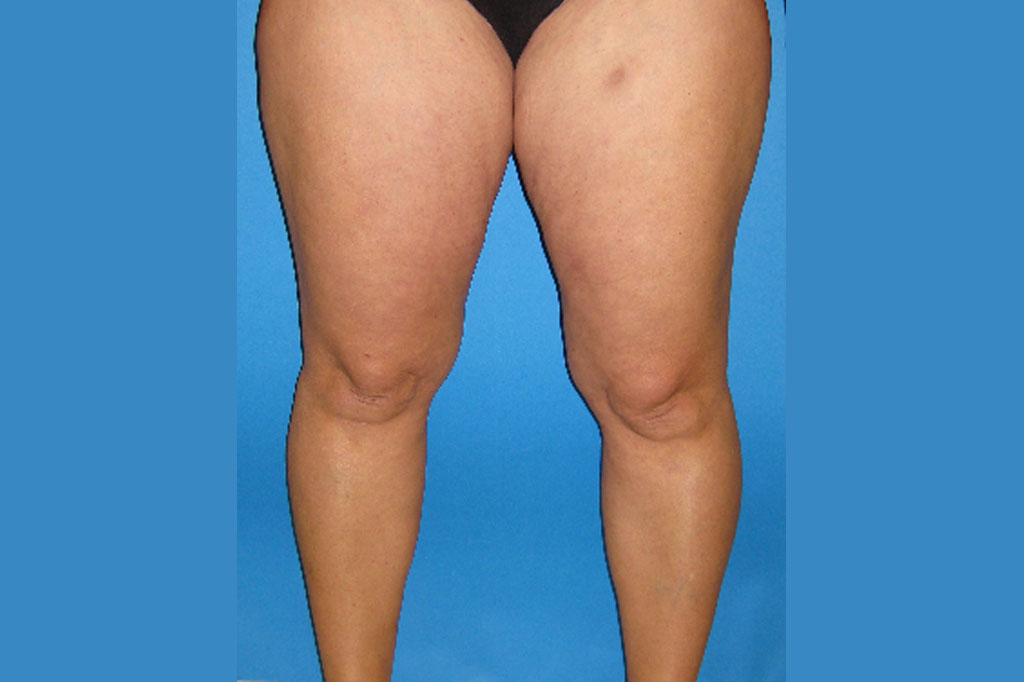 Liposuction Thighs ante-op profil