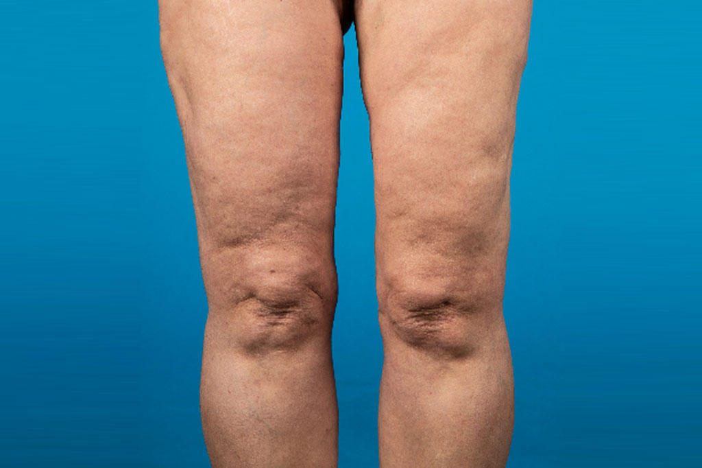 Liposuction Thighs post-op profil