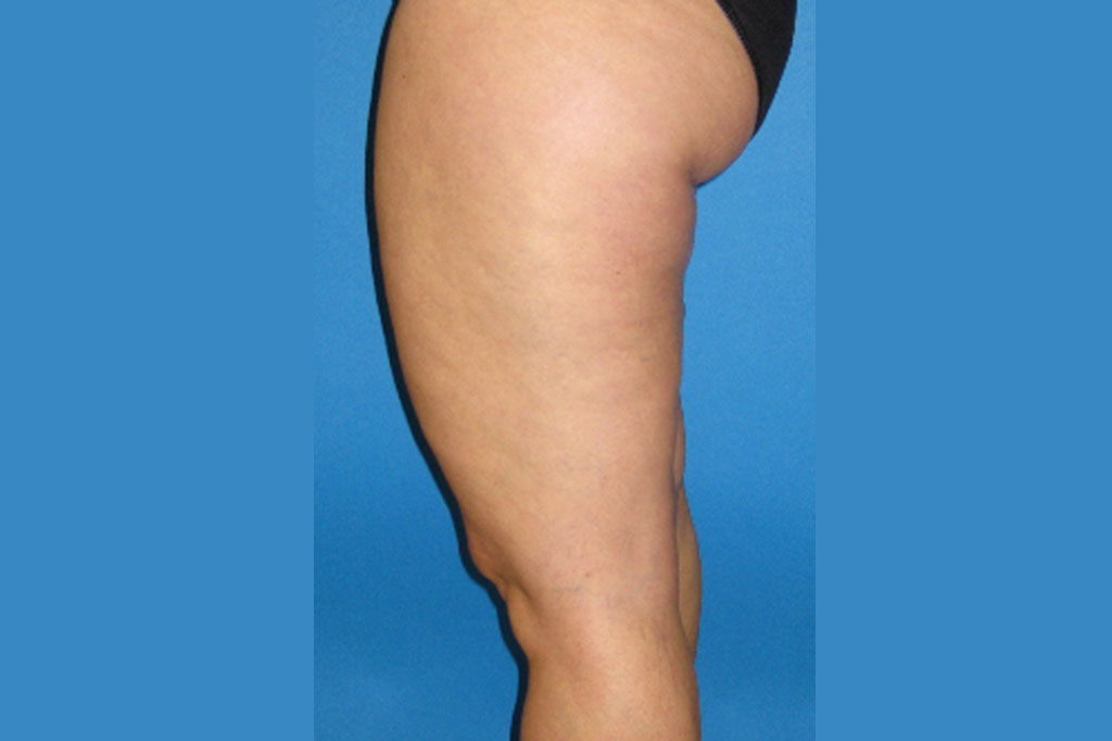 Liposuction Thighs ante-op lateral