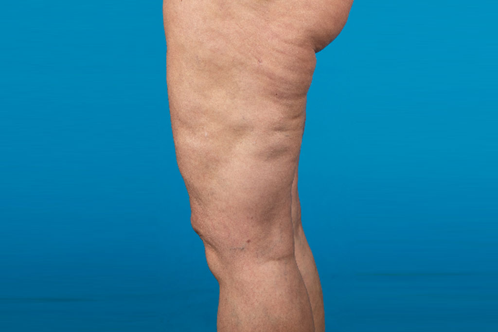 Liposuction Thighs post-op lateral