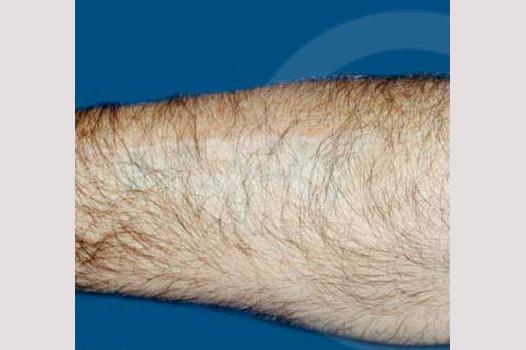 Narbenkorrektur Verbrennungsnarbe before forntal