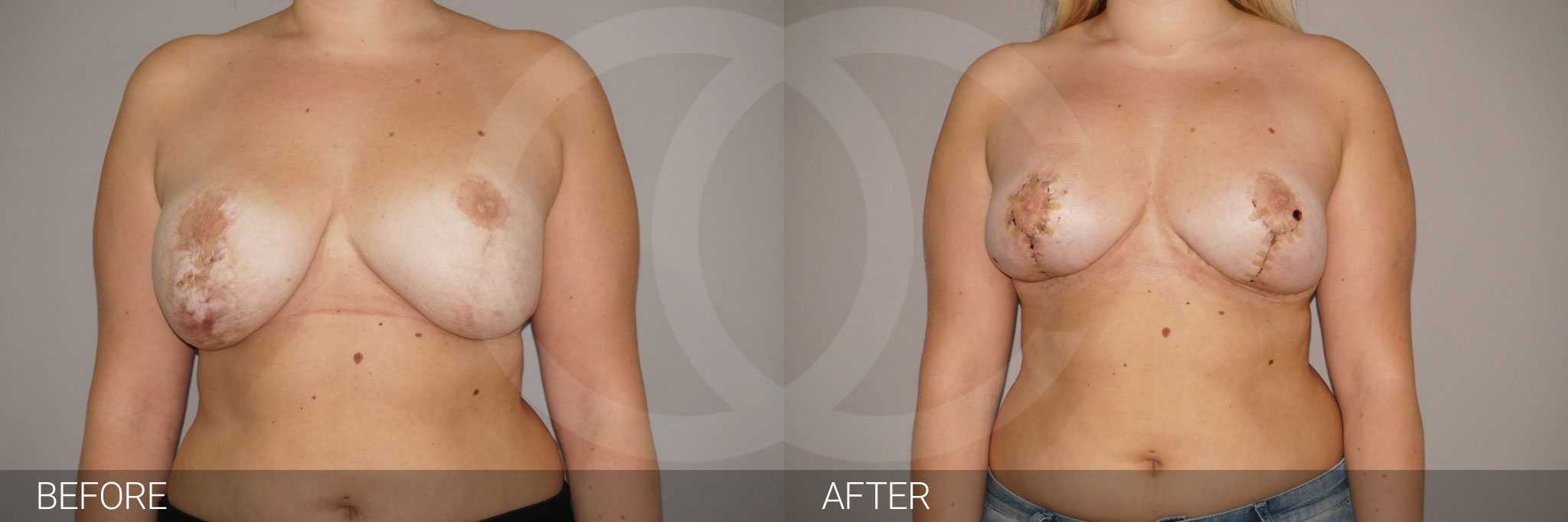 Scar Correction Scar excision ante/post-op I