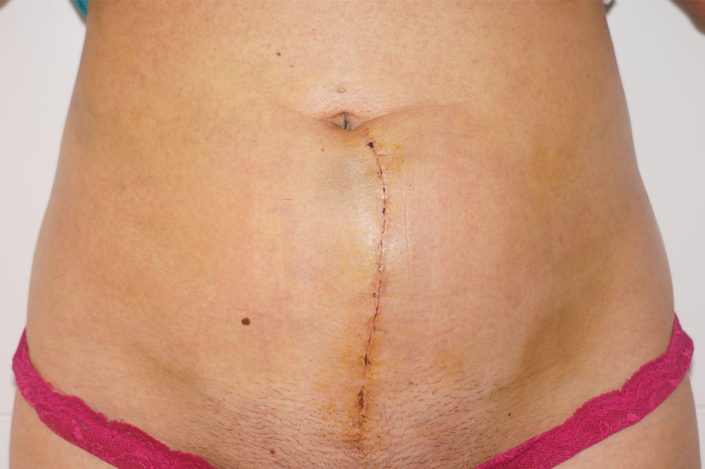 Scar Correction Hypertrophic scar post-op profil