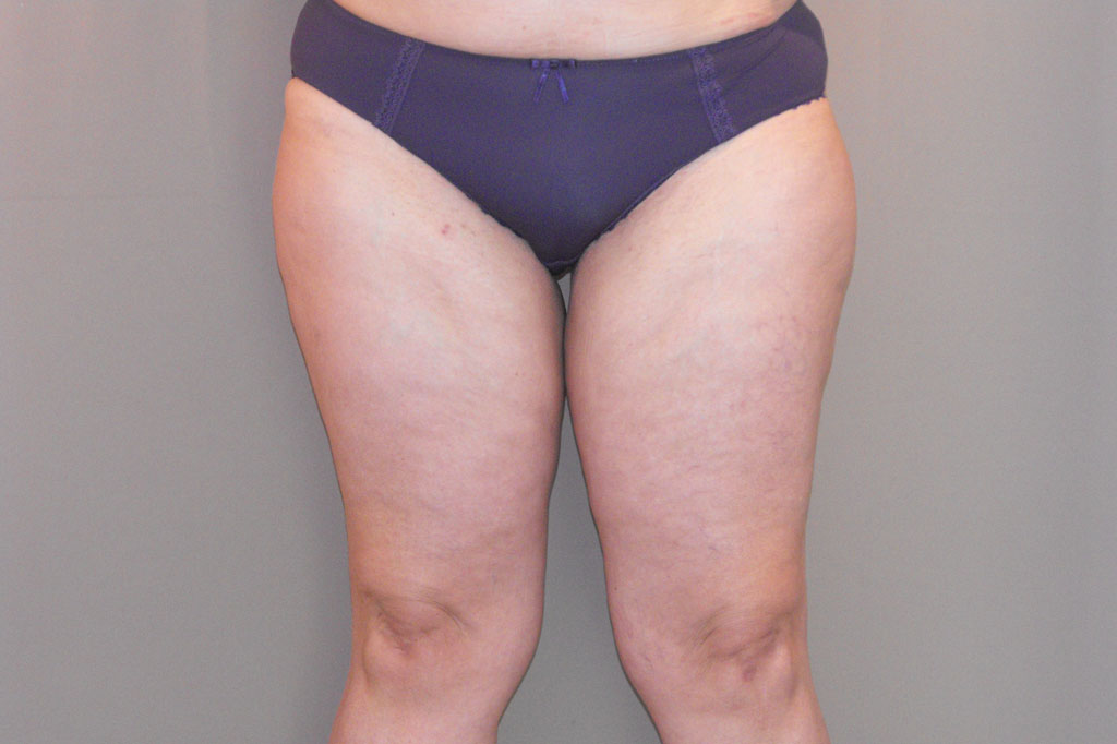 Thigh Lift Inner Thigh before forntal