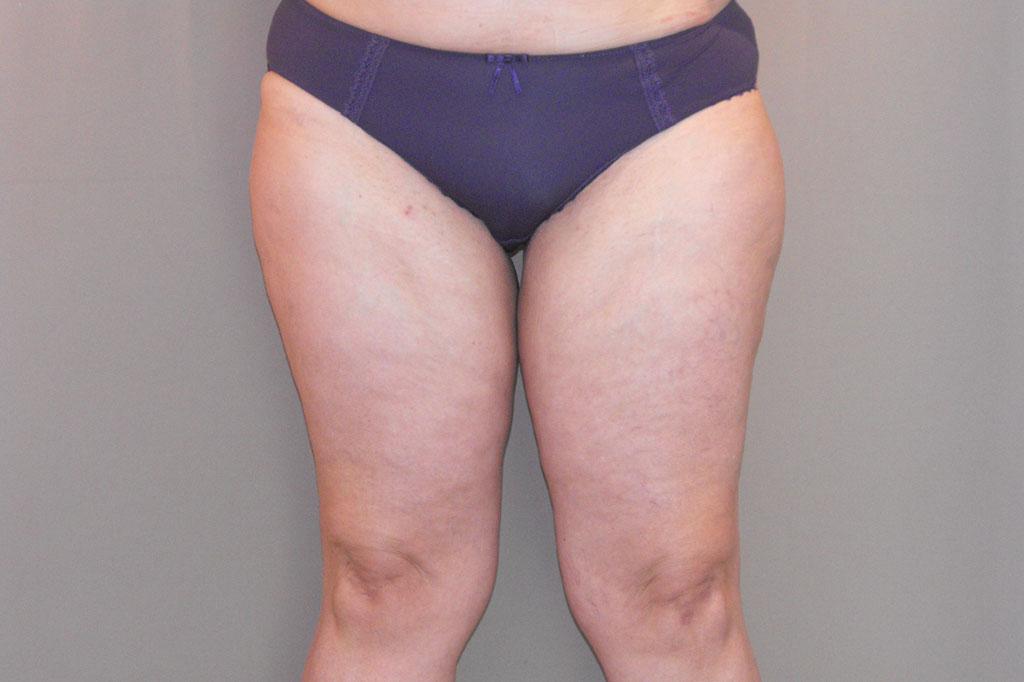 Lifting de muslos Liposucción Interna before forntal