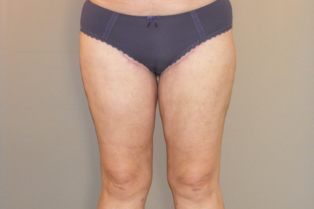 Thigh Lift Inner Thigh after frontal