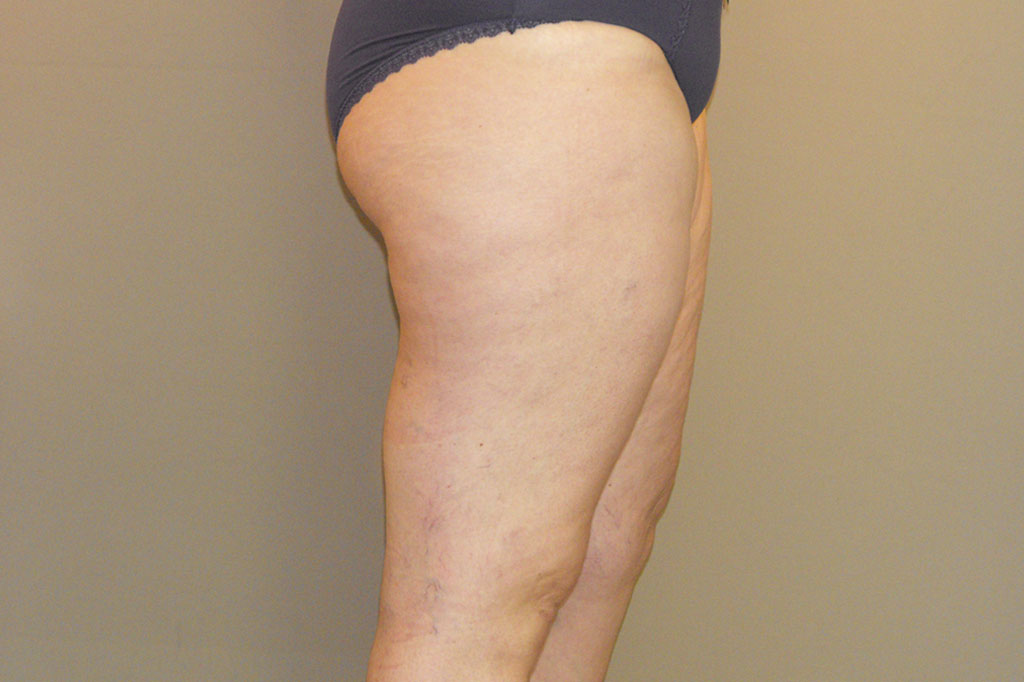 Thigh Lift Inner Thigh before side