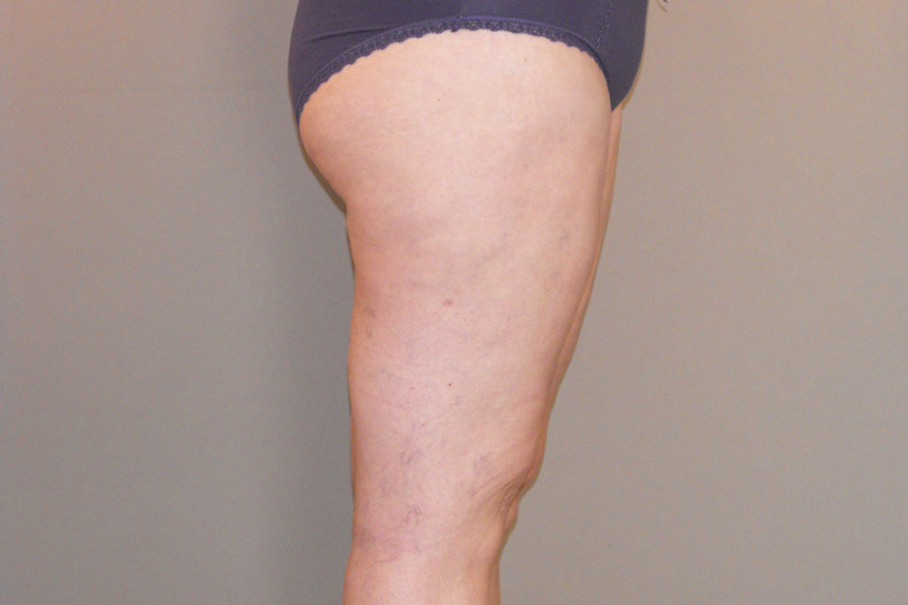 Thigh Lift Inner Thigh after side