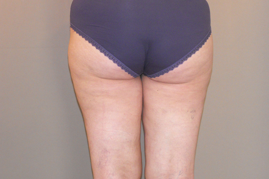 Thigh Lift Inner Thigh after profile
