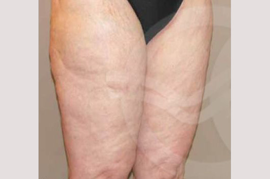 Thigh Lift Inner Crural Lift before forntal