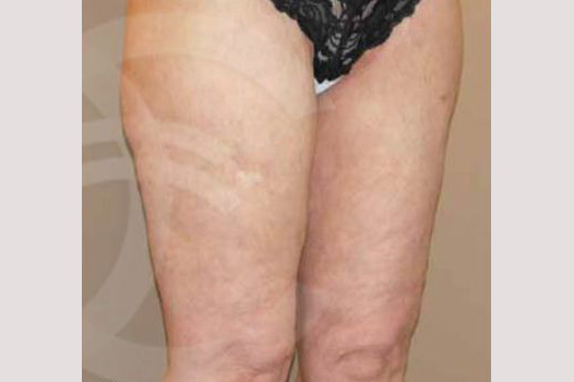 Thigh Lift Inner Crural Lift post-op profil