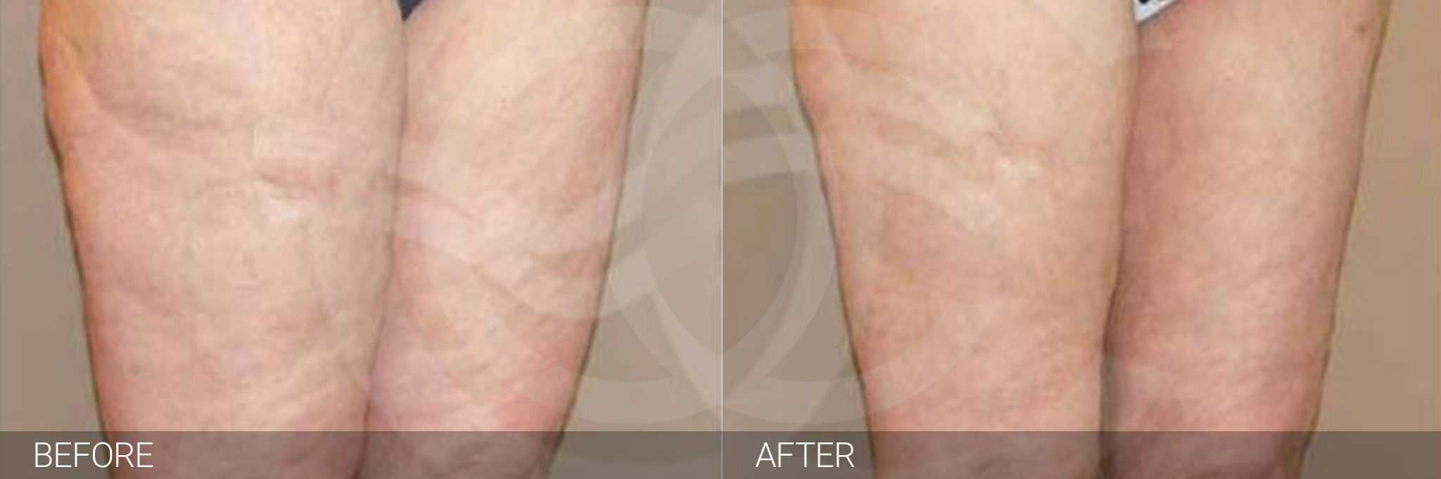 Thigh Lift Inner Crural Lift ante/post-op III