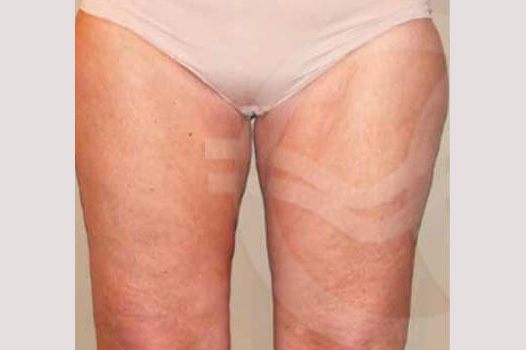 Thigh Lift and Liposculpture before forntal