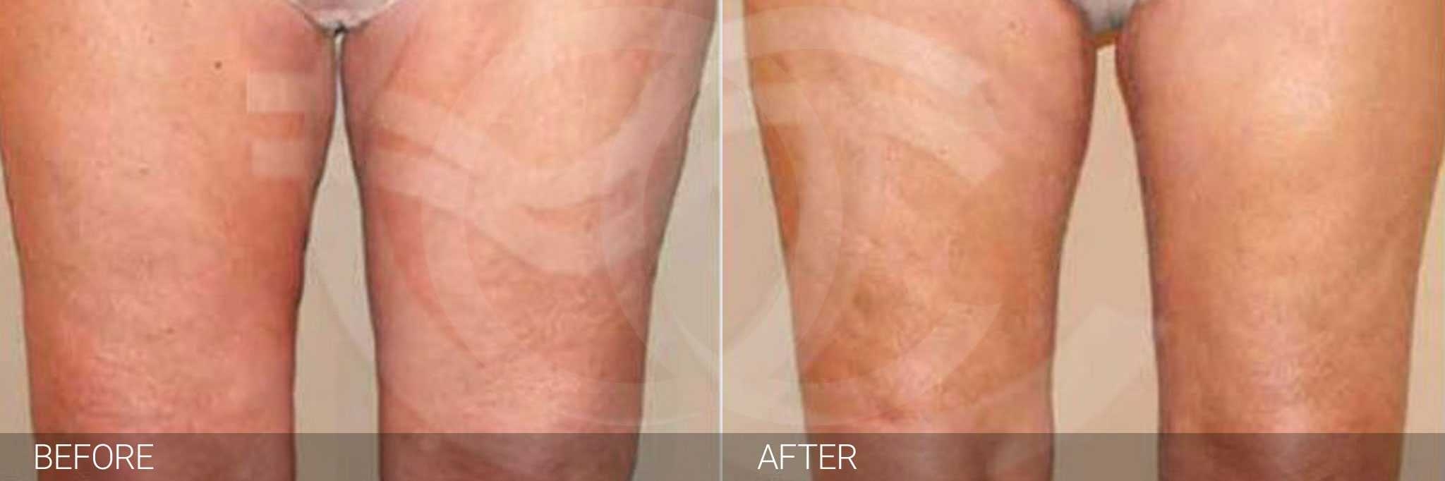 Thigh Lift and Liposculpture ante/post-op I