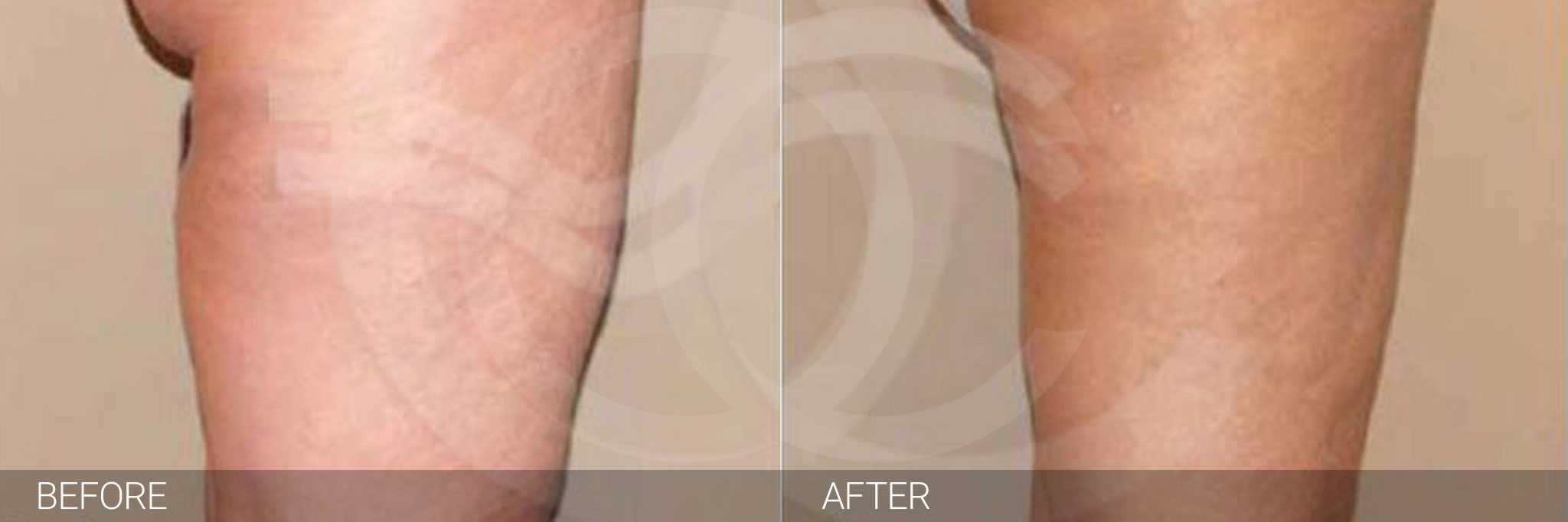 Thigh Lift and Liposculpture ante/post-op II