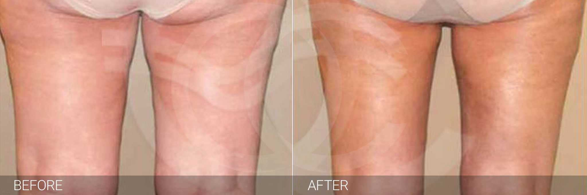 Thigh Lift and Liposculpture ante/post-op III