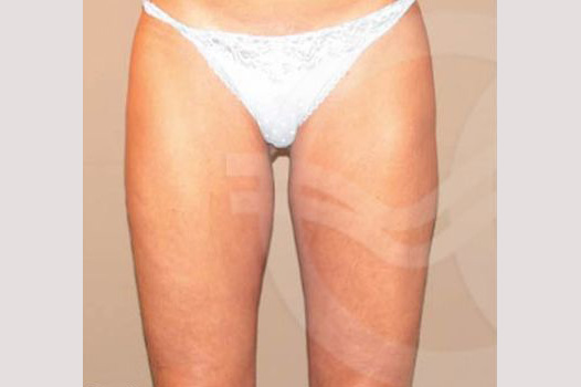 Thigh Lift Crural Lifting ante-op profil