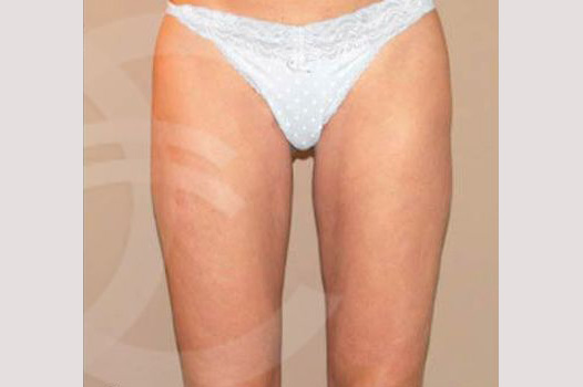 Thigh Lift Crural Lifting post-op profil