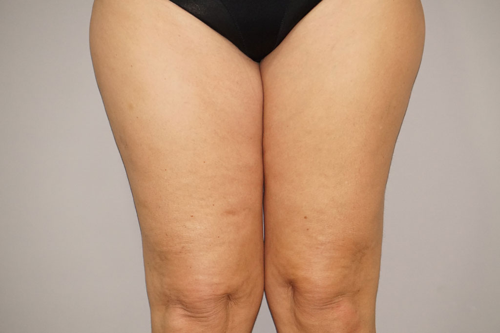Thigh Lift  before forntal