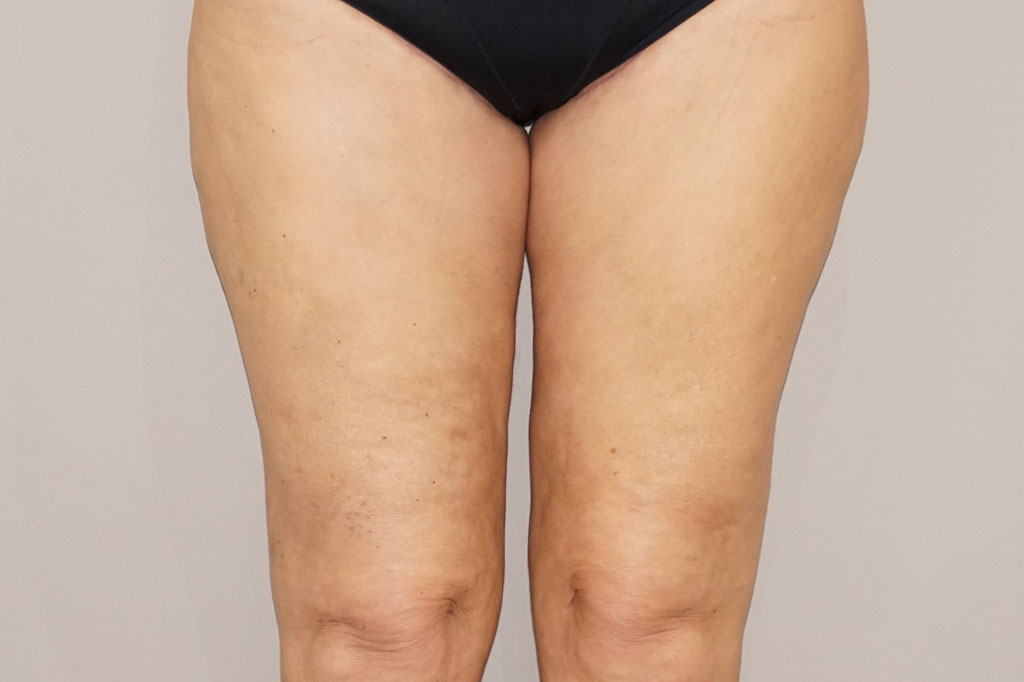 Thigh Lift  after frontal