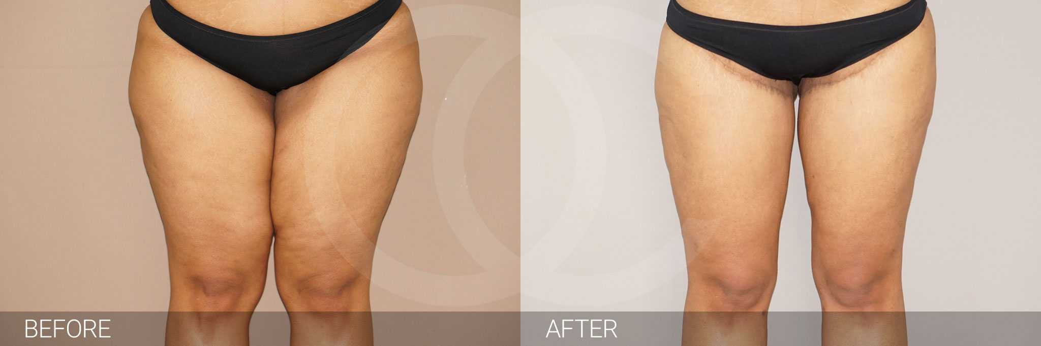 Thigh Lift  ante/post-op I