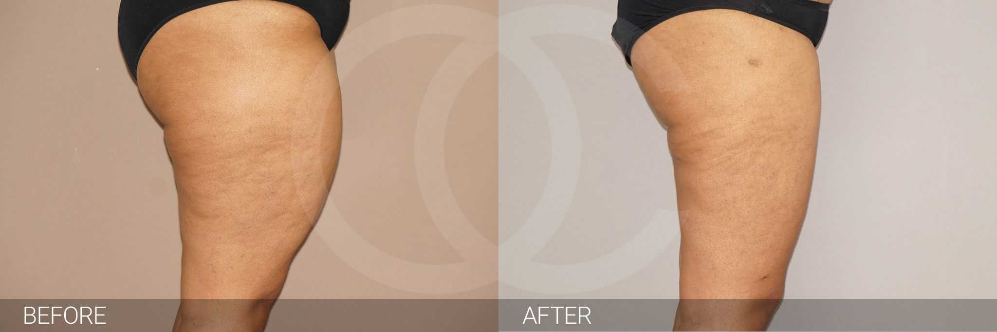 Thigh Lift  ante/post-op III