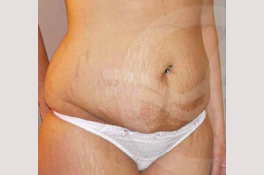 Abdominoplastia LIPO ABDOMINOPLASTIA before side