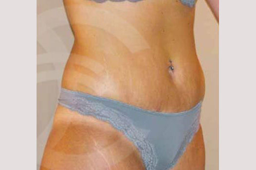 Abdominoplastia LIPO ABDOMINOPLASTIA after side