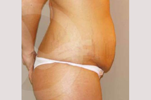 Abdominoplastia LIPO ABDOMINOPLASTIA before profile