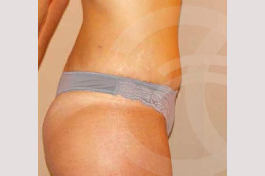 Abdominoplastia LIPO ABDOMINOPLASTIA after profile