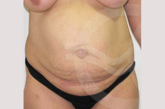 Tummy Tuck LIPOSUCTION HERNIA REPAIR before forntal