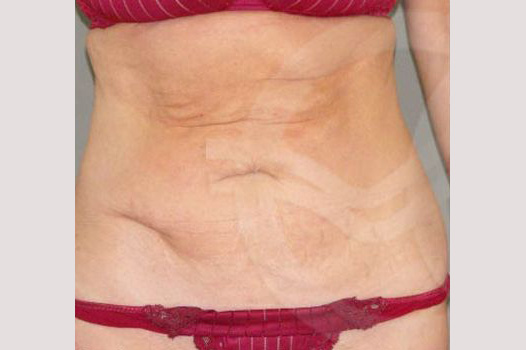 Tummy Tuck LIPOABDOMINOPLASTY SALDANHA before forntal