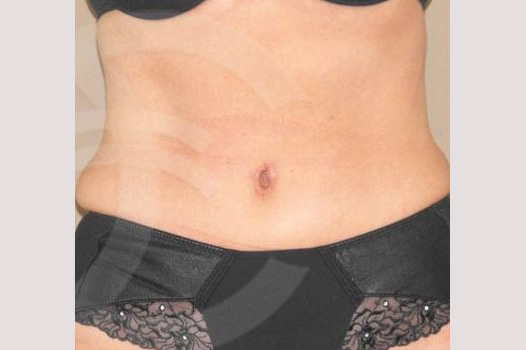 Tummy Tuck LIPOABDOMINOPLASTY SALDANHA after frontal