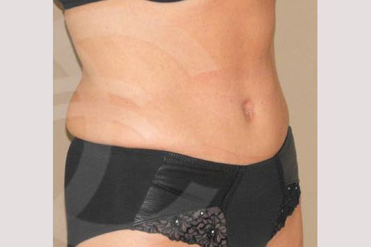 Abdominoplastia REDUCCIÓN TÉCNICA DE SALDANHA after side