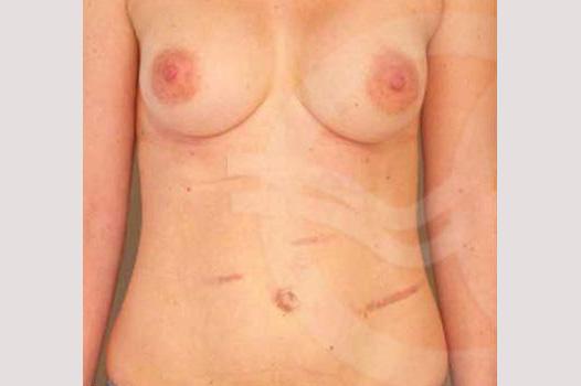 Abdomoniplastia CORRECCIÓN CICATRICES ABDOMINAL before forntal