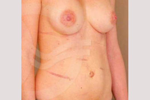 Tummy Tuck CORRECTION ABDOMINAL SCARS before side