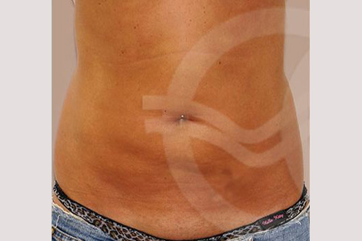 Tummy Tuck WITH LIPOSCULPTURE before forntal