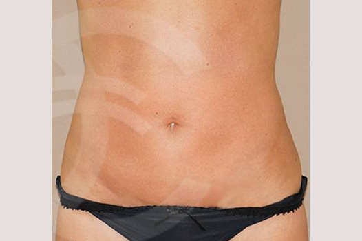 Tummy Tuck WITH LIPOSCULPTURE after frontal