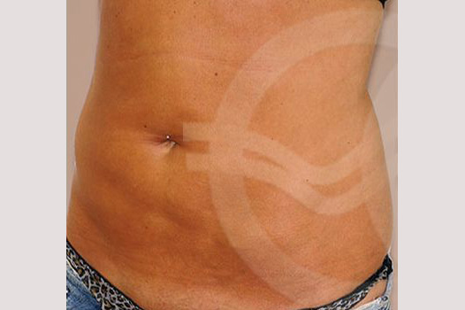 Tummy Tuck WITH LIPOSCULPTURE before side