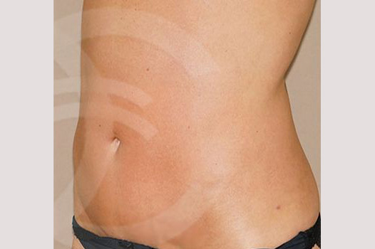 Tummy Tuck WITH LIPOSCULPTURE after side