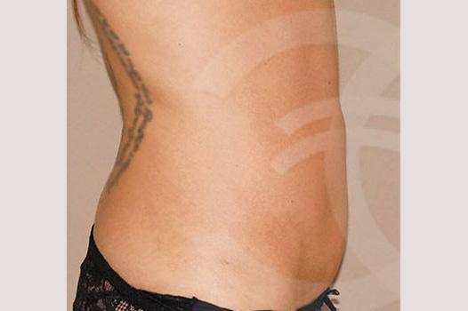 Abdominoplastia CON LIPOESCULTURA after profile