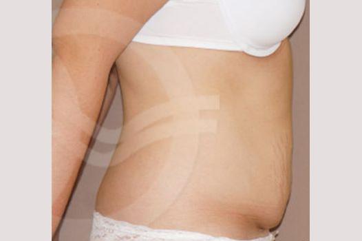 Abdomoniplastia TÉCNICA DE SALDANHA before profile