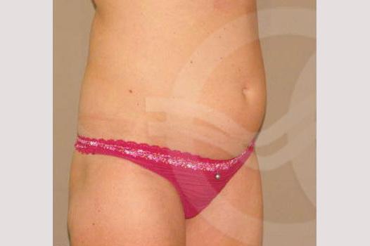 Bauchdeckenstraffung  before side