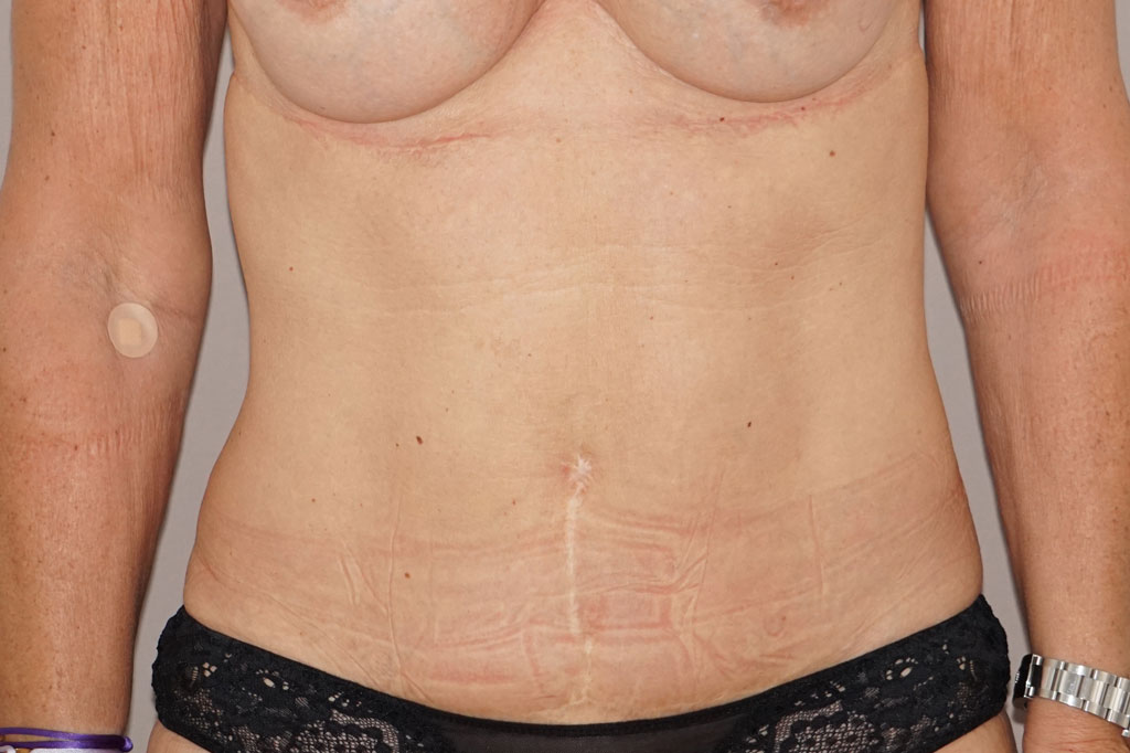 Abdominoplastie 1 before forntal