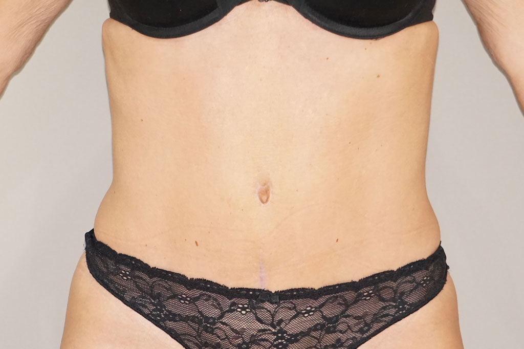 Bauchdeckenstraffung ABDOMINOPLASTIK after frontal